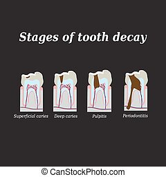 Stages of development of dental caries. Vector illustration...