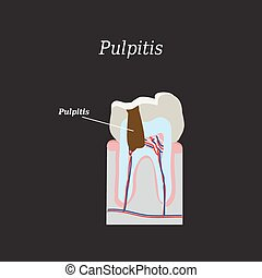 Dental pulp. Vector illustration on a black background.