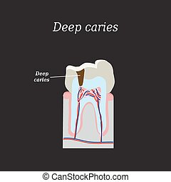 Deep tooth decay. Vector illustration on a black background.