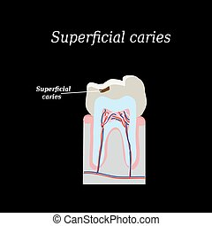 Home tooth caries. Vector illustration on a black...