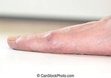 adult foot with a bunion - foot with a bunion