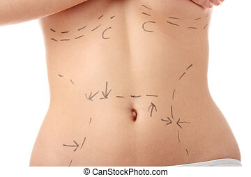 Caucasian woman\'s abdomen marked with lines - Closeup photo...