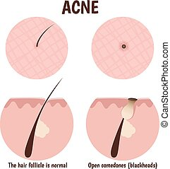 structure of the hair follicle, problematic skin with...