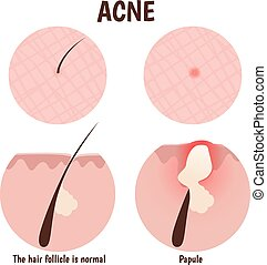 structure of the hair follicle, problem skin with papules