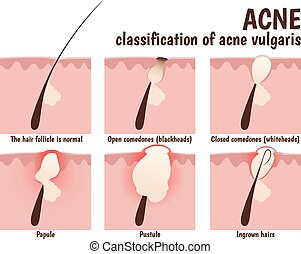 structure of the hair follicle, problem skin with pustules,...