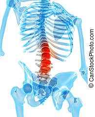 Painful lumbar spine - medically accurate illustration -...