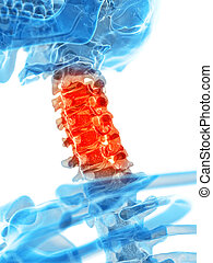 Painful cervical spine - medically accurate illustration -...