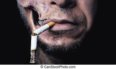 Smoking kills - The rotten Face of a young Man stands for...