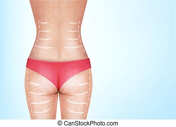 Lines, showing surgery on female body