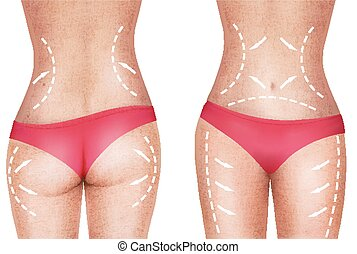 Lines, showing surgery on female body.