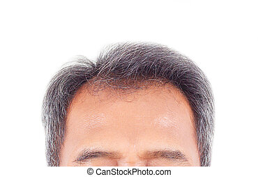 hair loss and grey hair, Male head with hair loss symptoms front side