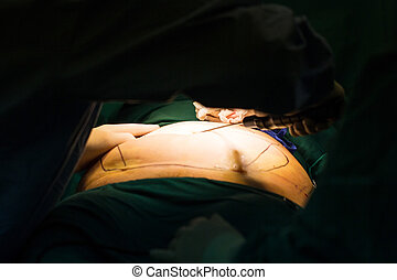 Liposuction surgery instrument prepare for operate in...