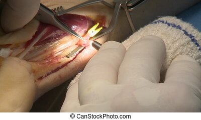 surgery in an operating room - Use of a contact endoscope...