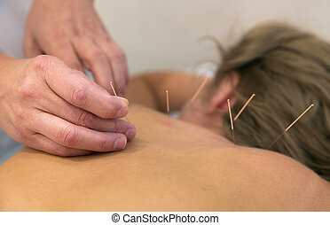 Treatment by acupuncture - Acupuncture needles on back of a...