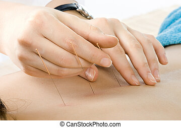 acupuncture - very close up acupuncture treatment ,...