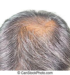 hair loss and grey hair.
