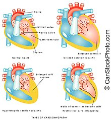 Diseases of the Heart Muscle - Types of cardiomyopathy: the...