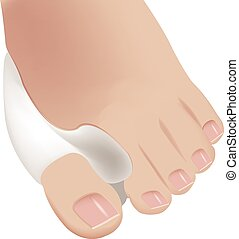 sole of the foot bunion - soles of the feet with hallux...
