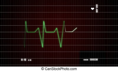 cardiogram - the video work of the heart to cardiographs