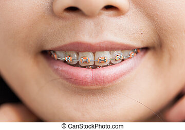 Closeup Ceramic and Metal Braces on Teeth. Broad Smile with...