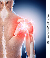 painful shoulder - medical 3d illustration of a painful...