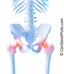 painful hip - medical 3d illustration of a painful hip