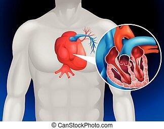 Heart disease diagram in detail