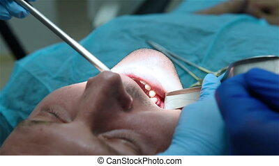 Dentist scissors cuts the thread - Dentist sews gum and...