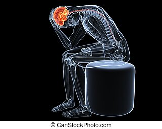headache/migraine illustration - 3d rendered x-ray...