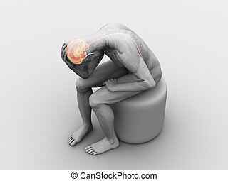 headache/migraine illustration - 3d rendered illustration of...
