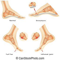 Turf Toe Injuries. Inflamed joint. Runners Foot Injuries....