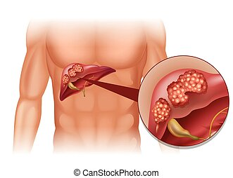 Liver cancer in human