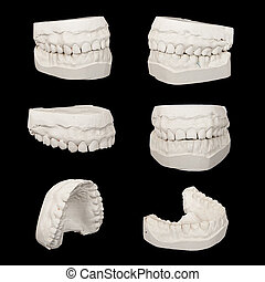 Set of Dental casting gypsum models plaster cast...