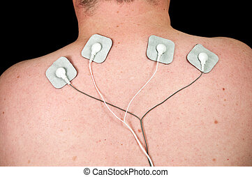 male with acute neck pain, electrodes to tens unit - photo...