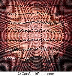 brain wave on electroencephalogram EEG for epilepsy, design...