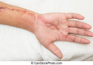 inflammation  wound in the forearm
