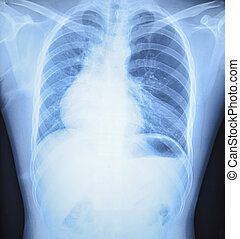 x-ray results in hospital