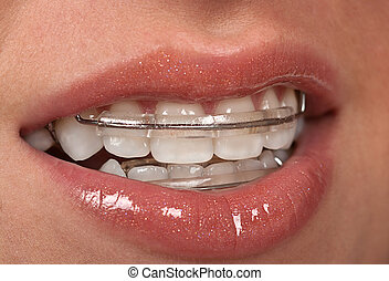 Cosmetic Braces - Girl with dental braces retainer