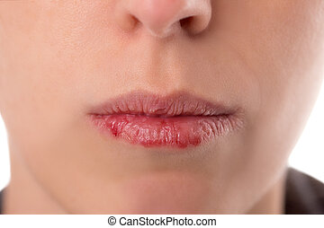Closeup woman´s face with brittle and dry lips, concept lip...