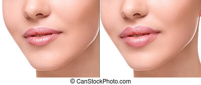 Lips before and after augmentation - Female lips before and...