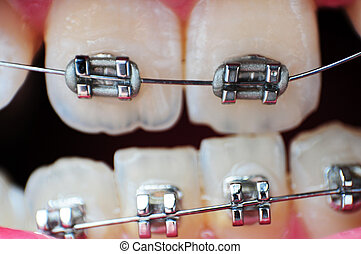 Braces Closeup - This image is a closeup of crooked...