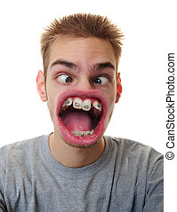 Man with weird mouth - A young adult white Caucasian male...
