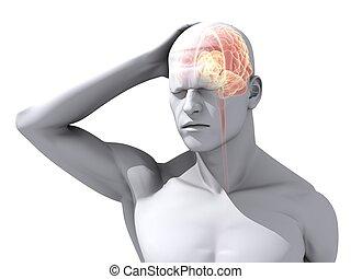 headache/migraine illustration - 3d rendered illustration of...