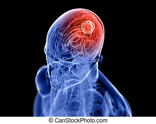 cerebral tumor - 3d rendered x-ray illustration of human...