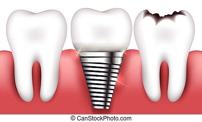 Healthy tooth, toorh with caries and dental implant,...