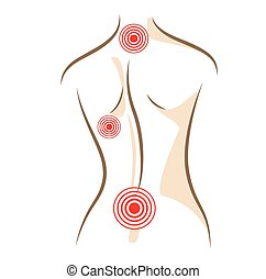 Concept of woman back pain vector sketch