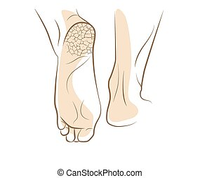 Concept of foot fungus with cracked heel, vector sketch