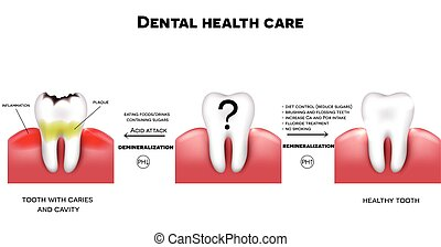 Dental health care, tips how to maintain healthy tooth, diet...