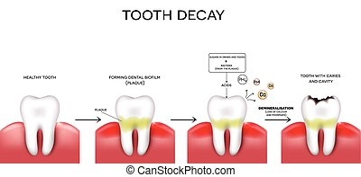Tooth decay formation step by step, healthy tooth, forming...