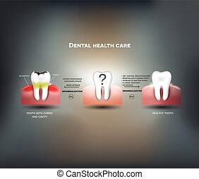 Dental health care tips. Diet without sugars, brushing,...
